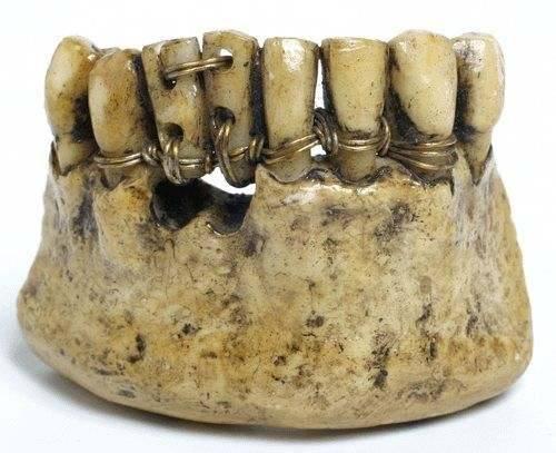 Los dentistas romanos hace 2000 años 24862610