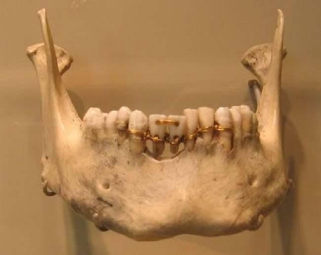 Los dentistas romanos hace 2000 años 24909710