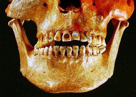 Los dentistas romanos hace 2000 años Dentad10