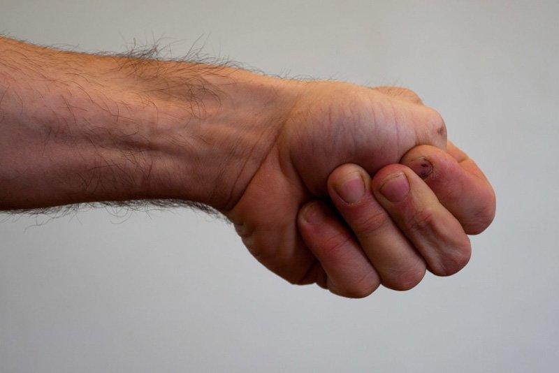 Mẹo vặt sức khoẻ Thumb-10