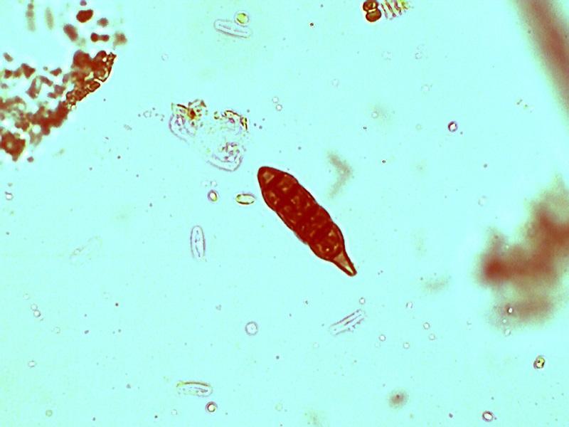 Microorganismos en agua de abrevadero (pista forestal en Pinilla del Valle 26-05-2018) Macroc10