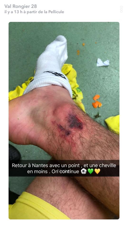 L1 J16  Dimanche 03 décembre 2017 - 15:00 AS Saint-Etienne / FC Nantes - Page 2 24774910