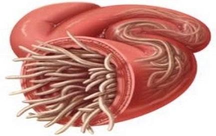 افضل علاج الديدان بالاعشاب 3101