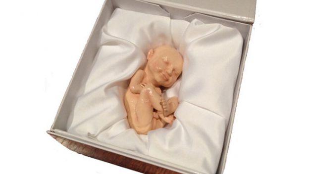 Órganos impresos en 3D, el futuro de los trasplantes Feto3d10