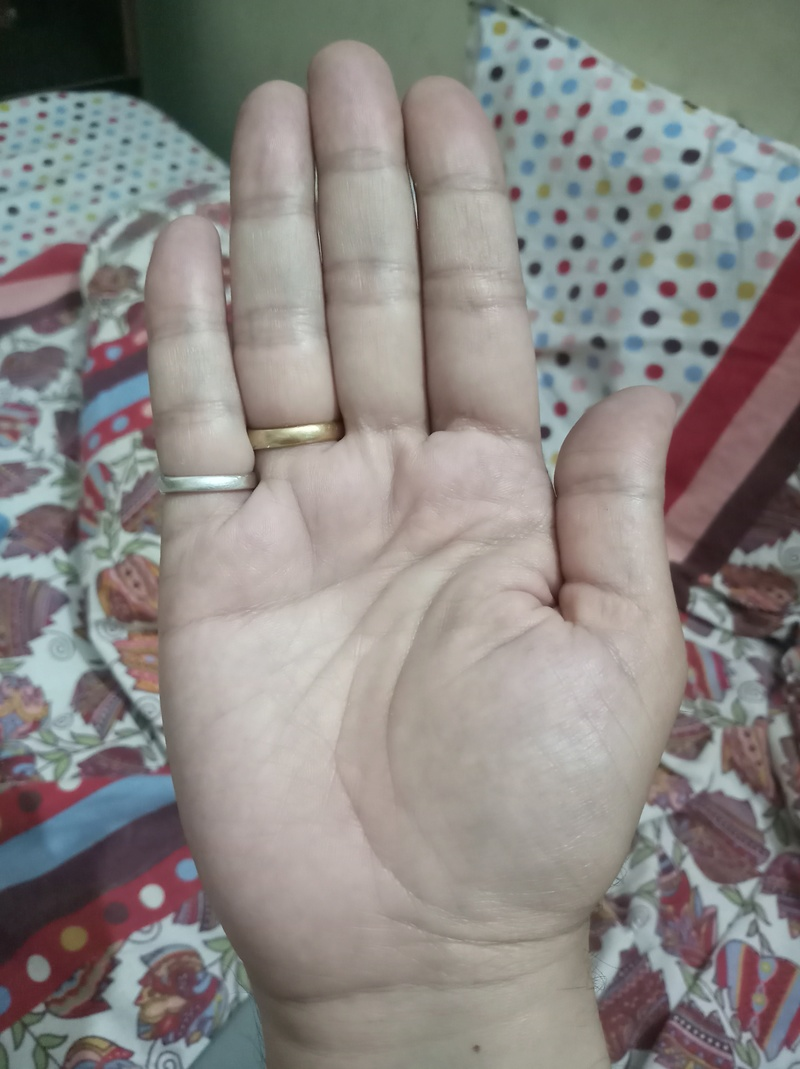 Not able to identify sign on my hand 20180410