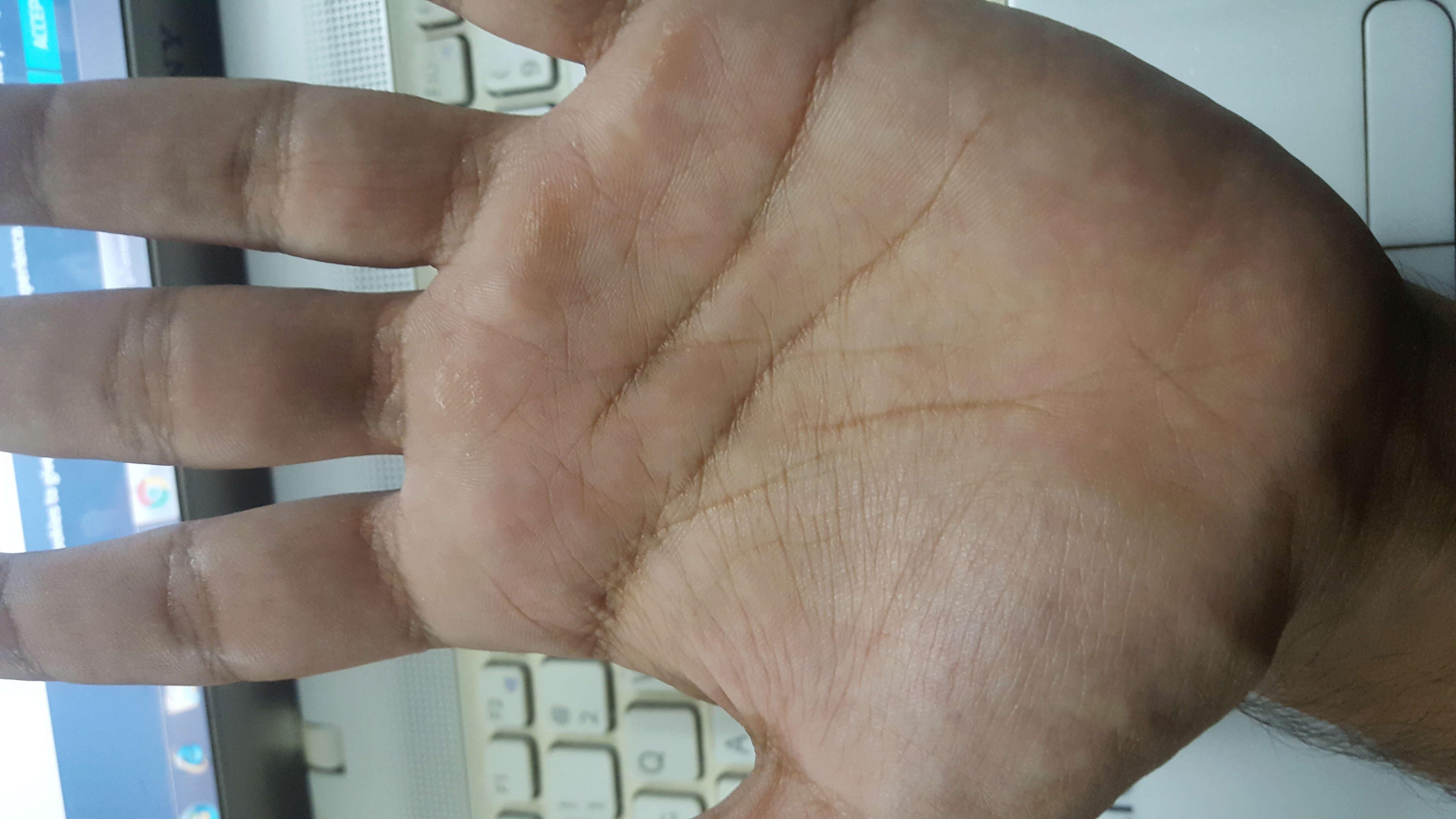 life line broken in both hands  20180510