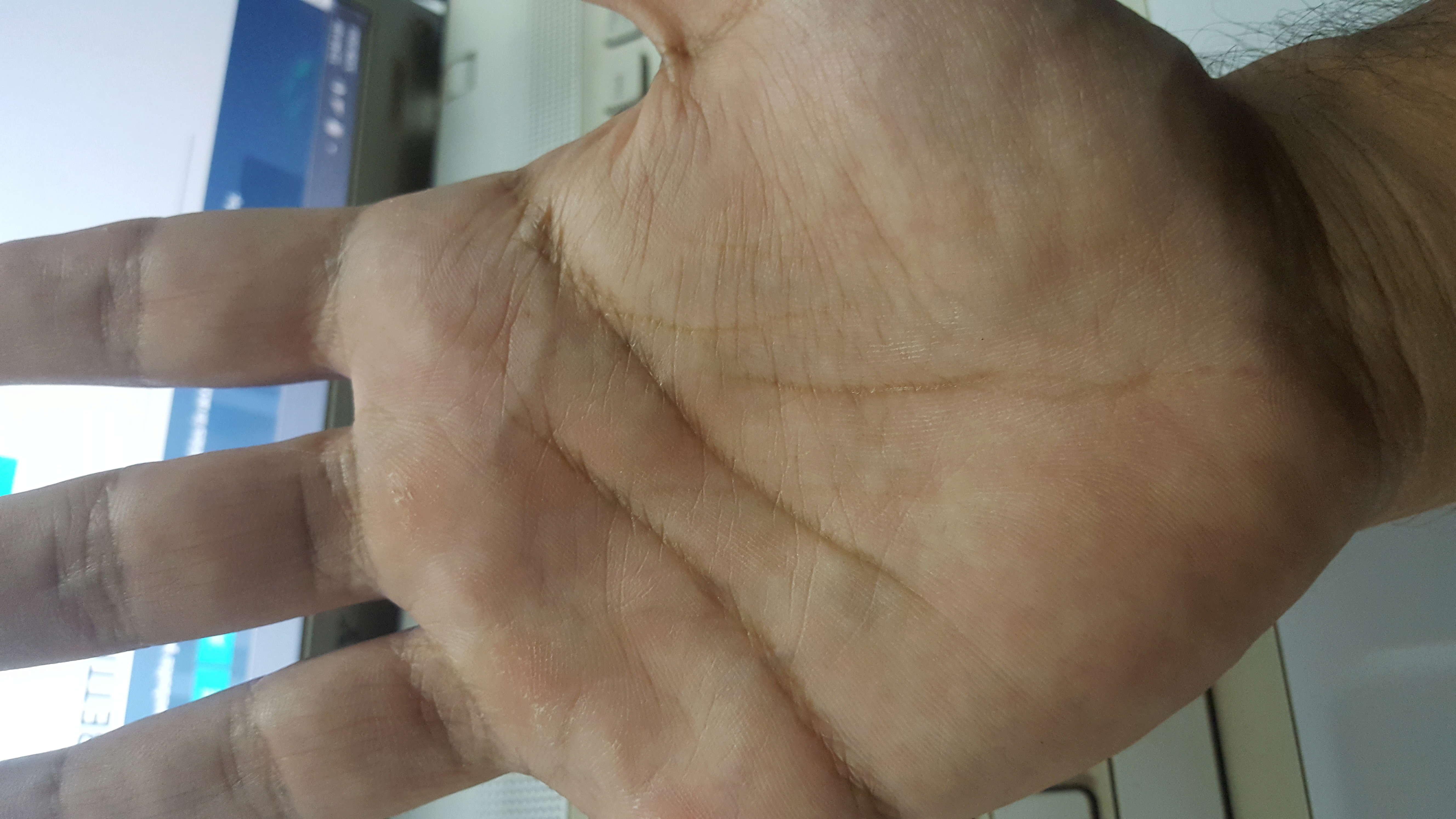 life line broken in both hands  20180511