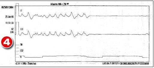Damning Ambulance Report Ambula12