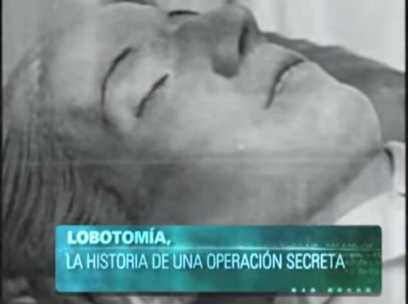 EVA PERÓN, LOBOTOMÍA Y CONTROL MENTAL Aaa14