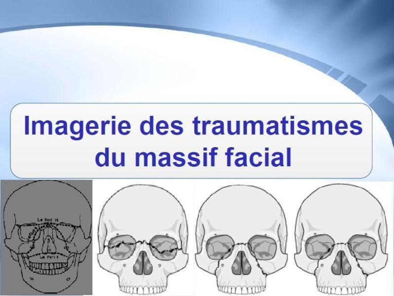 Imagerie des traumatismes du massif facial Sans_t70