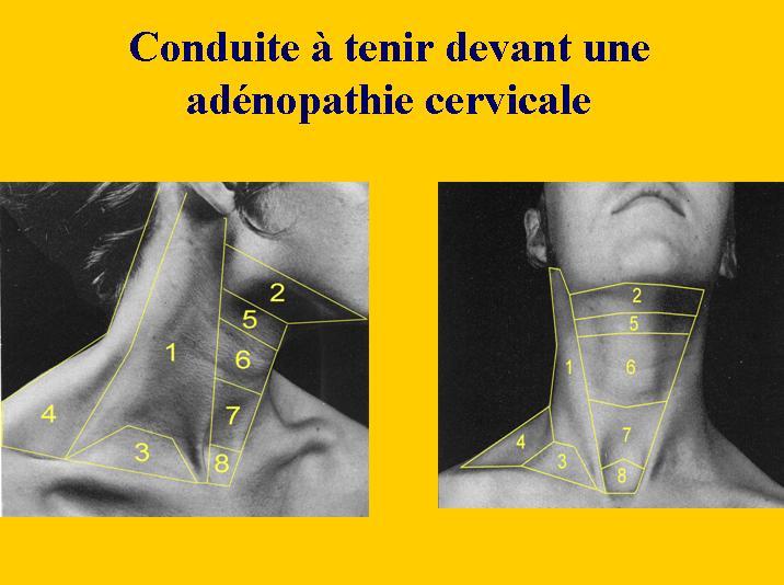 Conduite à tenir devant une adénopathie cervicale Vb10