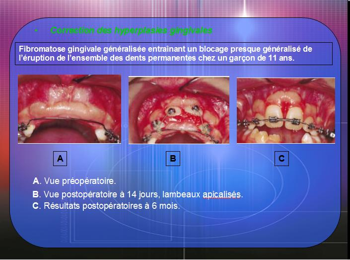 Les interrelations Parodonto-Orthodontiques 110