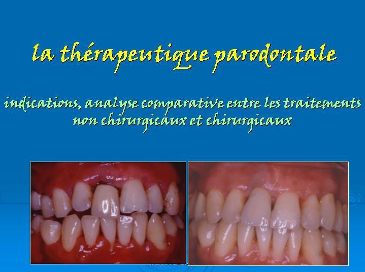 la thérapeutique parodontale : indications,analyse comparative entre les traitements non chirurgicaux et chirurgicaux 19028110