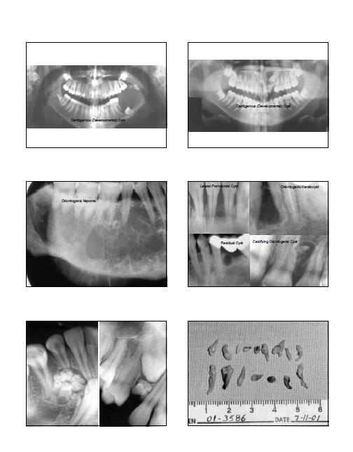 buccale - radiologie buccale Sans_t15