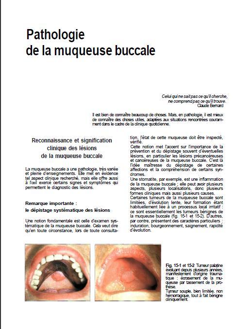 muqueuse - pathologie de la muqueuse buccale Sans_t34