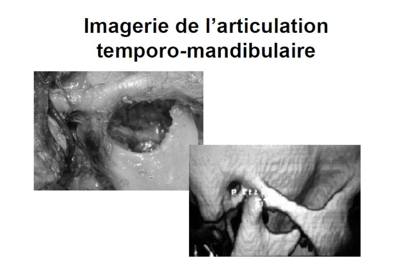 Imagerie de l'articulation temporo-mandibulaire Sans_t60