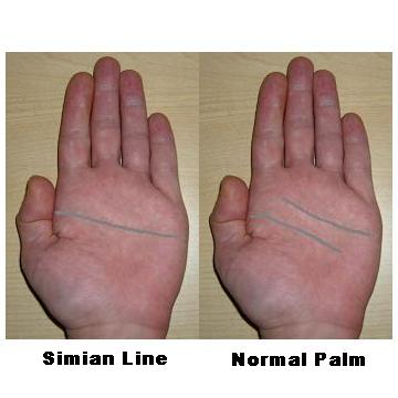 Simian Line / Single Transverse Palmar Crease Simian11