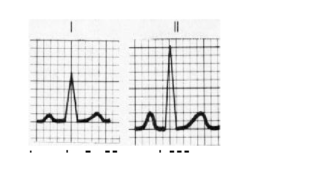 CHAPTER 6 : ECG LEADS AND MONITER LEADS 1_bmp10