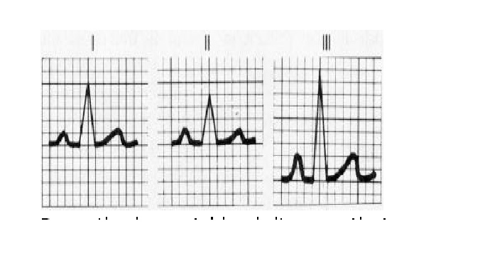 CHAPTER 6 : ECG LEADS AND MONITER LEADS 2_bmp10