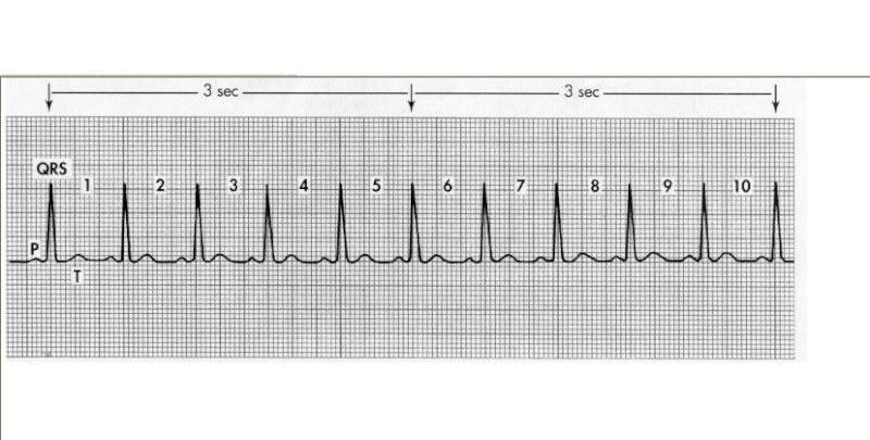 CHAPTER 4 : BASIC WAVES , HEART RATE Cc_bmp10