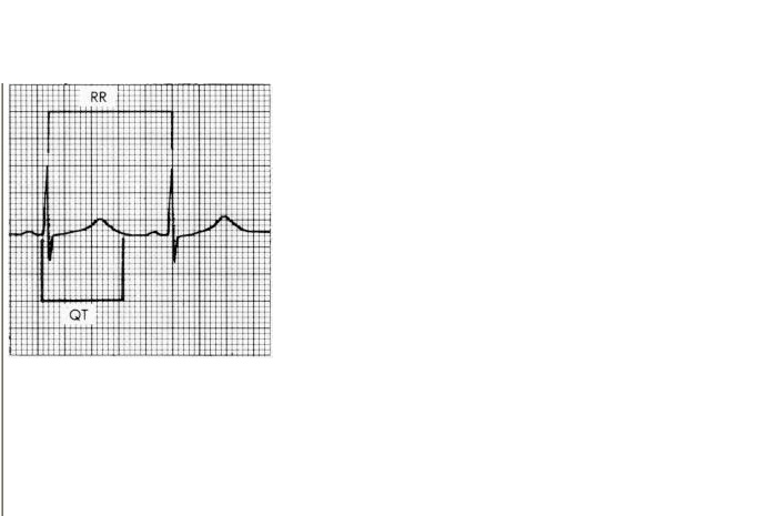 CHAPTER 4 : BASIC WAVES , HEART RATE Cd_bmp10