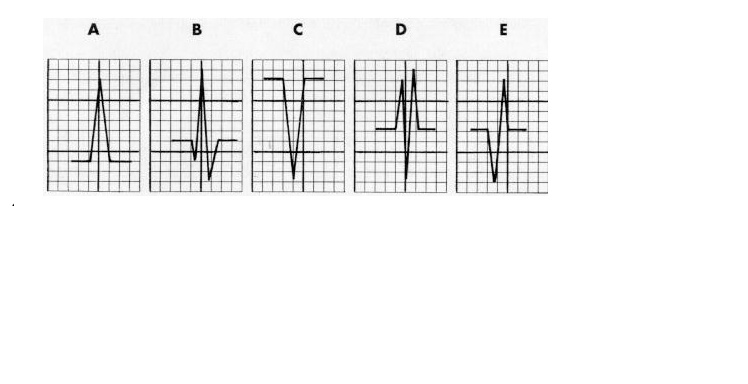 CHAPTER 4 : BASIC WAVES , HEART RATE Dr_bmp10