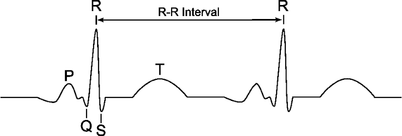 CHAPTER 4 : BASIC WAVES , HEART RATE Ecg10