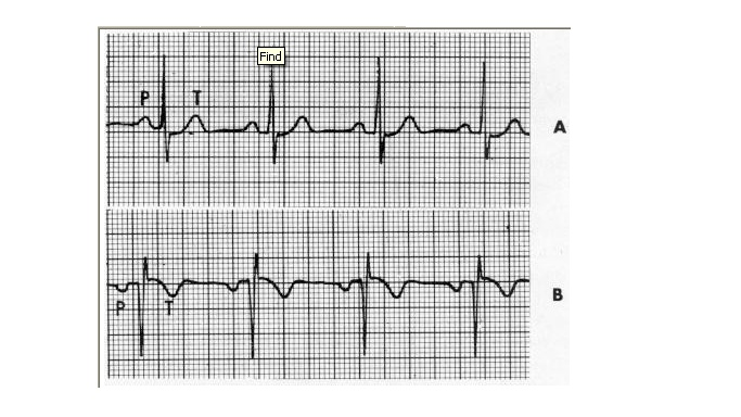 CHAPTER 6 : ECG LEADS AND MONITER LEADS Io_bmp10