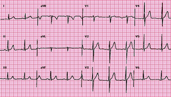 CHAPTER 4 : BASIC WAVES , HEART RATE Normal10