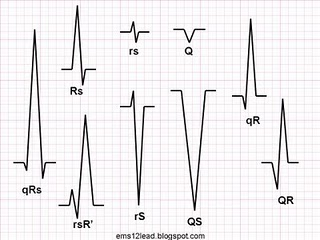 CHAPTER 3 : Basic waves part 2 Qrs_no10