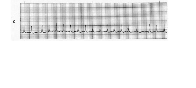 CHAPTER 4 : BASIC WAVES , HEART RATE Sr_bmp10