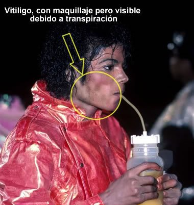 Immagini Vitiligine - Pagina 4 22161_10