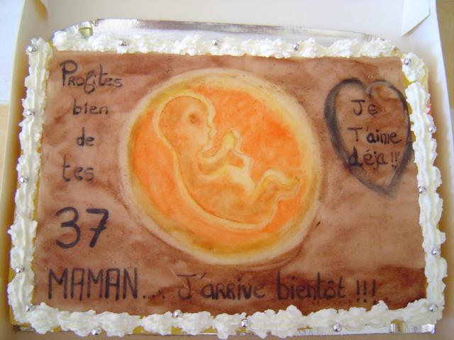 foetus in utero 06410