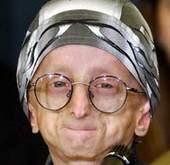 مرض الشيخوخة المبكرة , البروجيريا عند الأطفال Progeria 137710