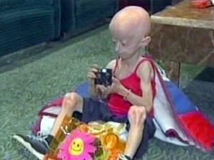مرض الشيخوخة المبكرة , البروجيريا عند الأطفال Progeria 260110