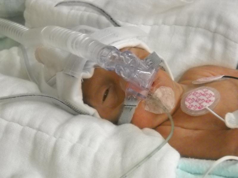 accouhement de bébé espoire mini billy +photo 8juin 2010 a 27semaine et2/7 Dscn1211