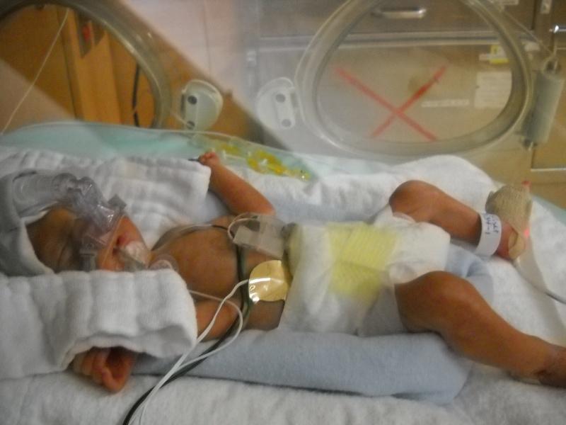 accouhement de bébé espoire mini billy +photo 8juin 2010 a 27semaine et2/7 Dscn1312