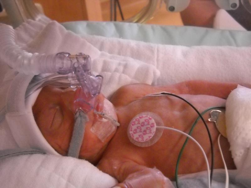 accouhement de bébé espoire mini billy +photo 8juin 2010 a 27semaine et2/7 Dscn1511