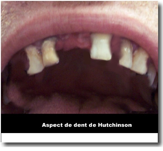 ��dent�� - Dent de Hutchinson Z00010