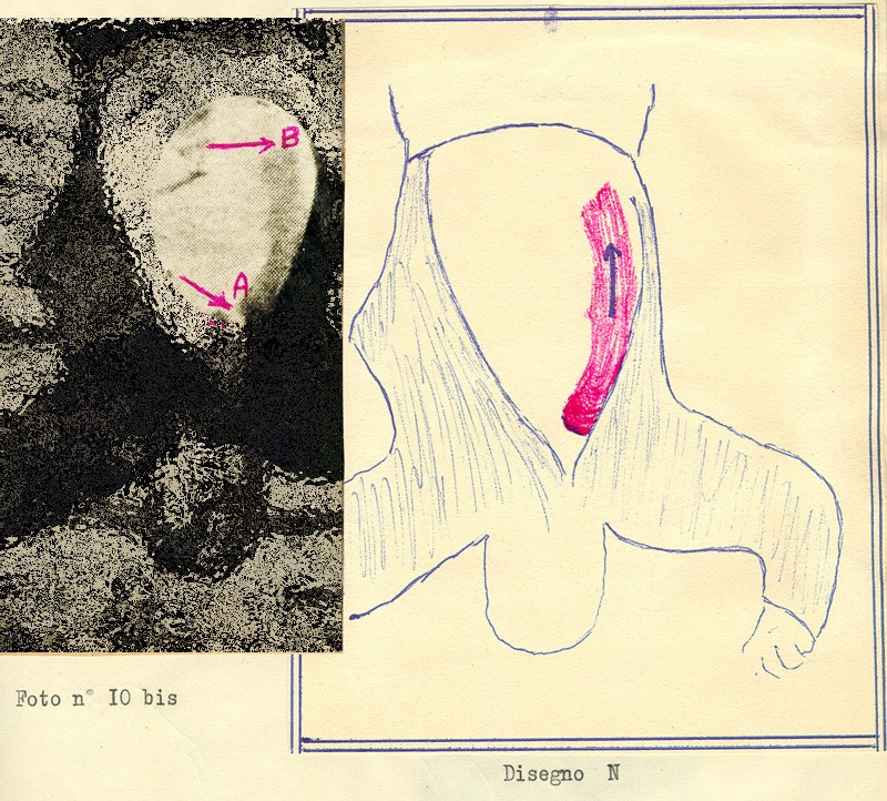 autopsie - Autopsie de Claretta Petacci et de Benito Mussolini Autops10