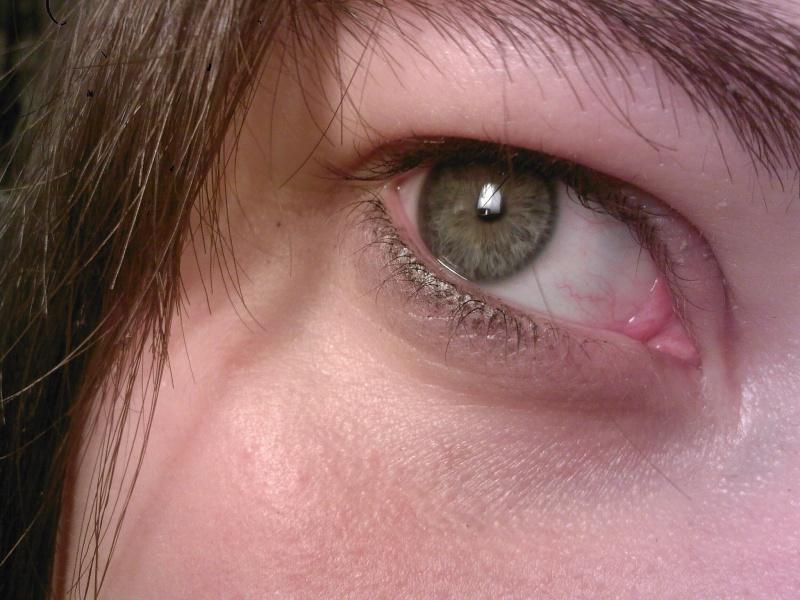 Les yeux sont le miroir de l'âme - Page 2 Sp_a0610