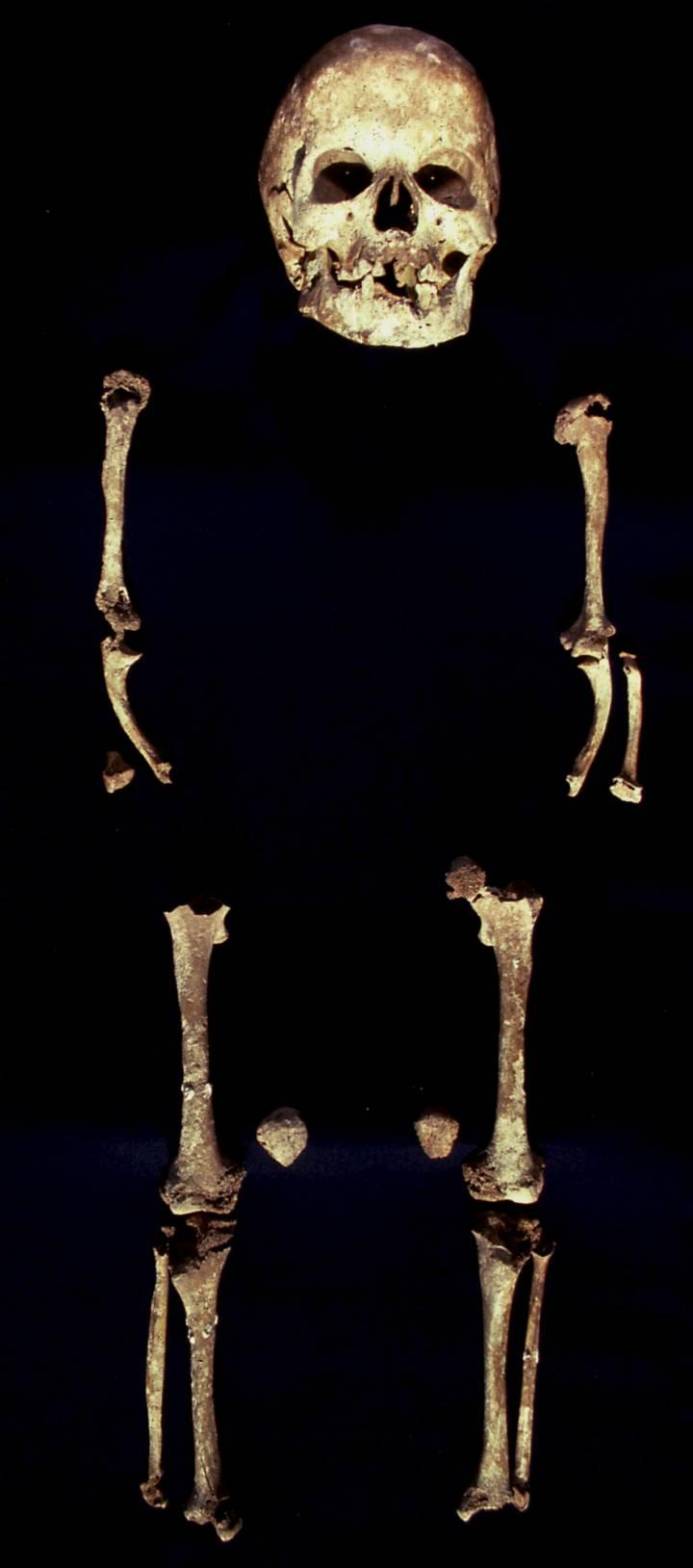 Personas discapacitadas ya eran cuidadas en sociedades de hace 200.000 años. [Historia] 15414110