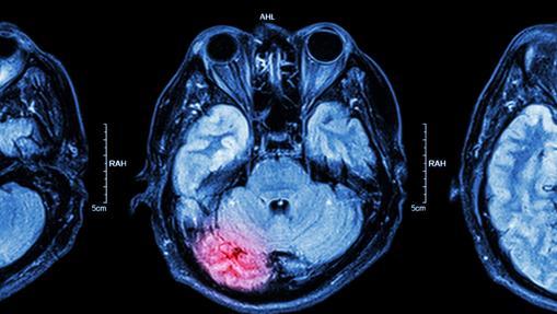 Cerebro,  neurociencia. Estudio  histórico sobre maduración  y crecimiento cerebral. Adobes10