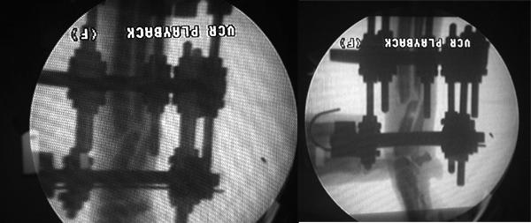 Trattamento frattura inveterata radio-ulna Dscn0012