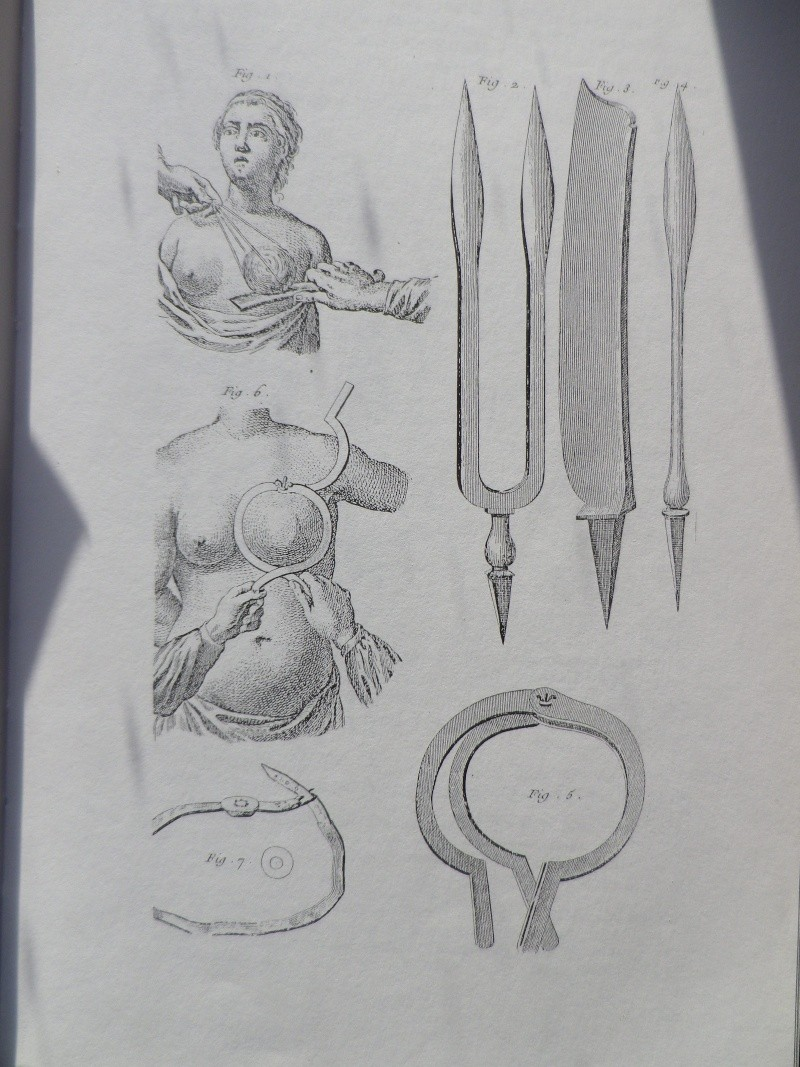 La Médecine des Lumières - Page 2 Alice_12