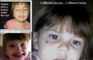 Three Years Ago, the World Lost Caylee Anthony Abuse210