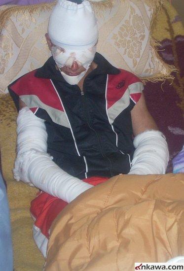طلبة بغديدا الراقدين في مستشفى الحمدانية يطالبون بالتحقيق العاجل في موضوع استهدافهم والكشف عن المجرمين 232