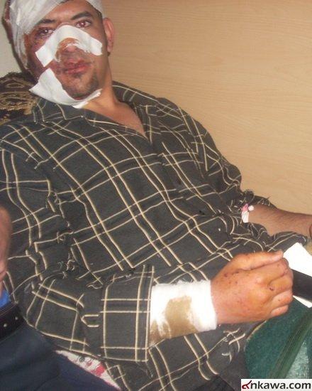 طلبة بغديدا الراقدين في مستشفى الحمدانية يطالبون بالتحقيق العاجل في موضوع استهدافهم والكشف عن المجرمين 332