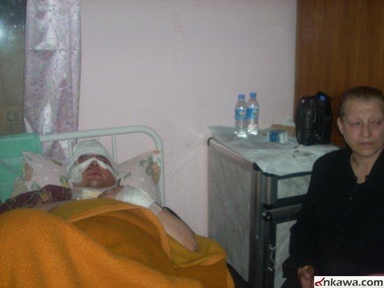 طلبة بغديدا الراقدين في مستشفى الحمدانية يطالبون بالتحقيق العاجل في موضوع استهدافهم والكشف عن المجرمين 425