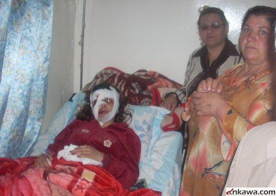 طلبة بغديدا الراقدين في مستشفى الحمدانية يطالبون بالتحقيق العاجل في موضوع استهدافهم والكشف عن المجرمين 523